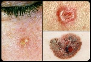Skin Cancer summerskin_rm_collage_of_precancerous_skin_growths_s17